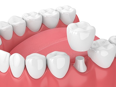 Model of dental crowns for treating damaged teeth.