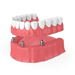 An implant-retained denture.