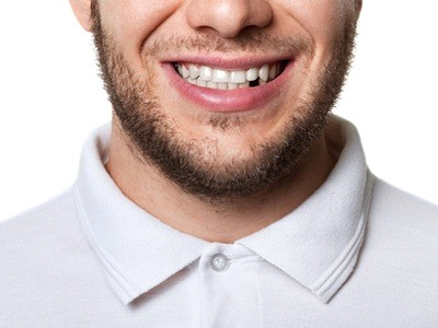 young man white shirt missing tooth