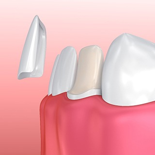 computer illustration of porcelain veneers being placed over teeth