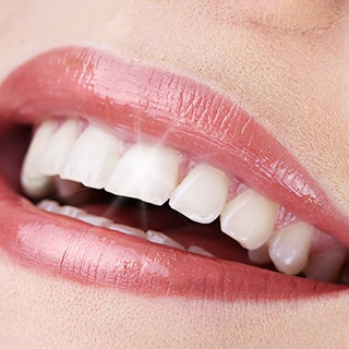 Close-up of sparkling smile with veneers
